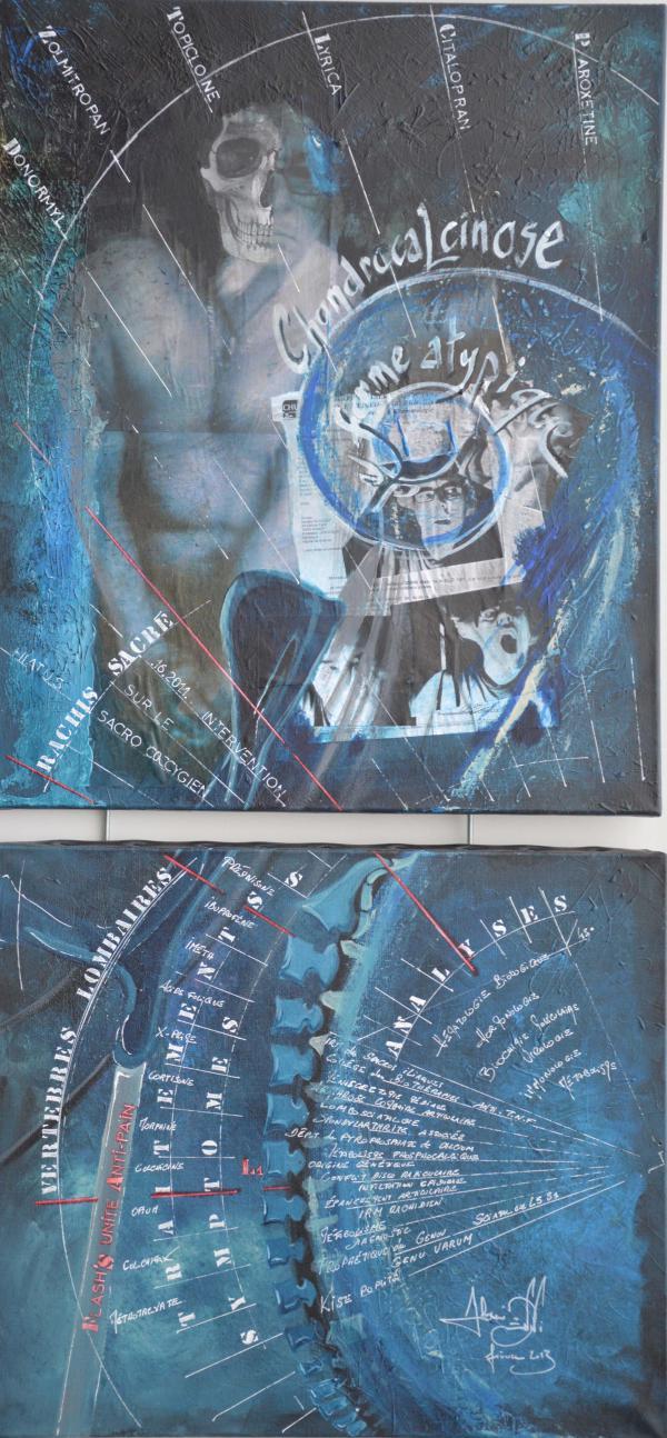 Peinture, série sur la souffrance ... '' Flash unite Pain ''